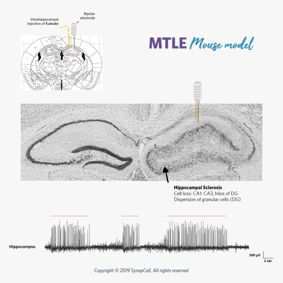 Mesio-temporal-lobe-epilepsy-MTLE-SynapCell